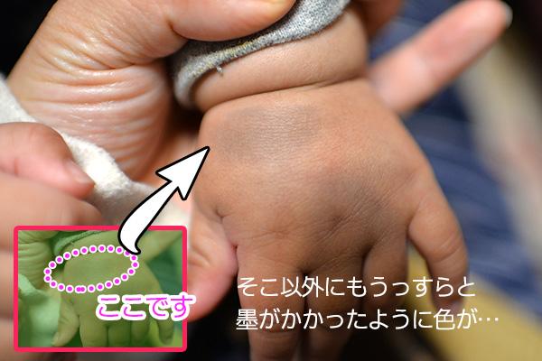 異所性蒙古斑…赤ちゃんの手のアザ